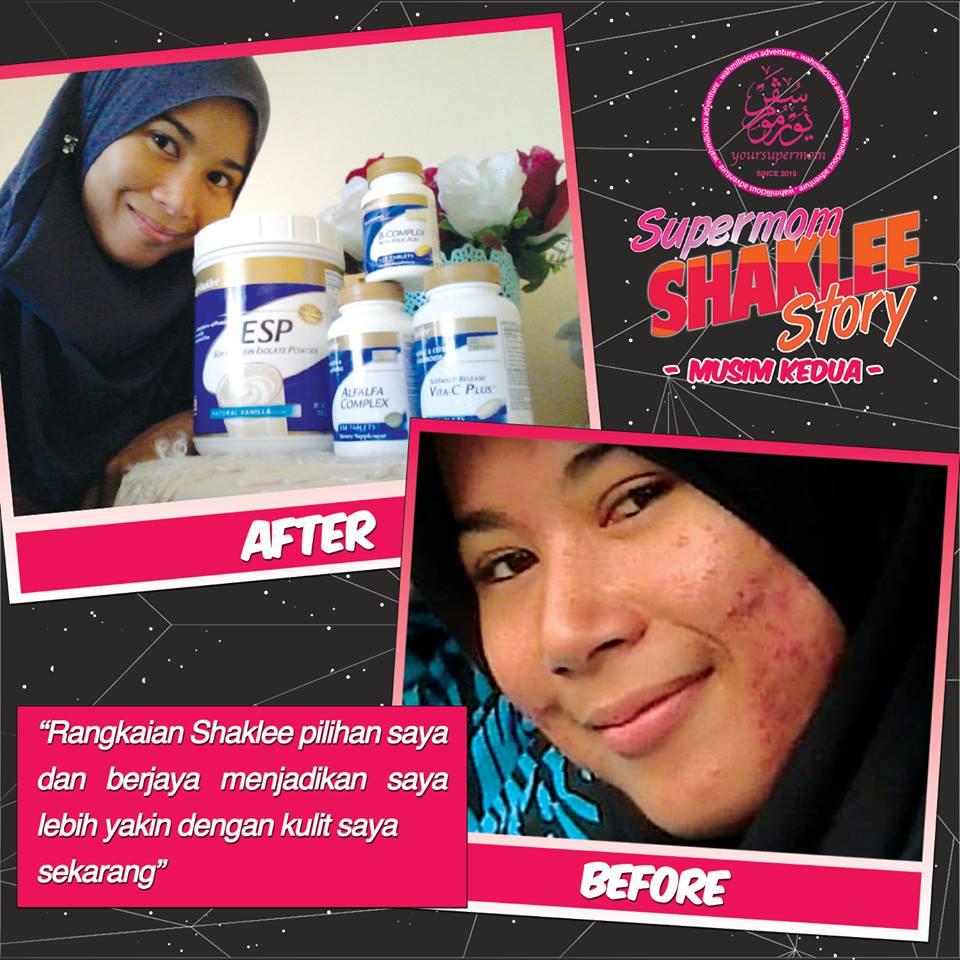 pulihkan kulit rosak akibat kosmetik