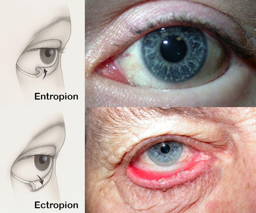entropion-&-ectropion