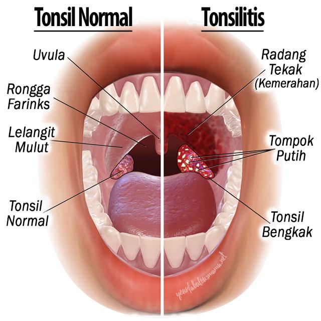 Tonsil dan Tonsilitis