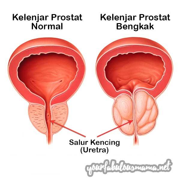Prostat Normal vs Bengkak Prostat