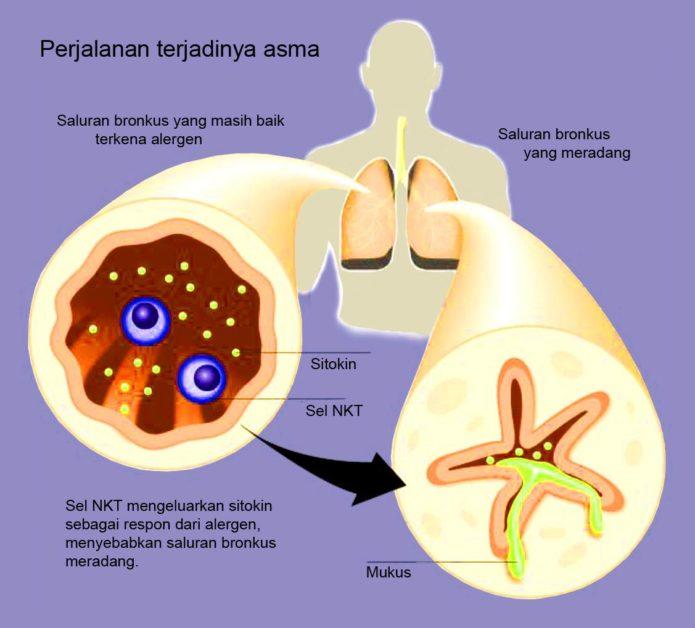penyebab asma dan cara mengatasinya.jpg