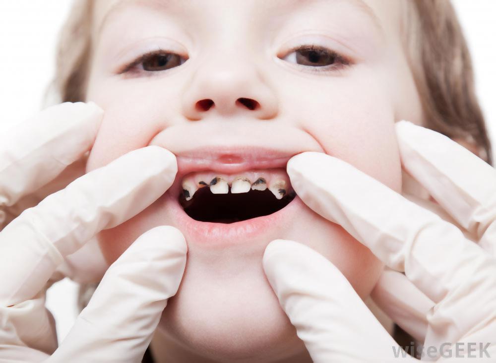 Air Berkatbonat Punca Gigi Cepat Rosak Pada Kanak-kanak