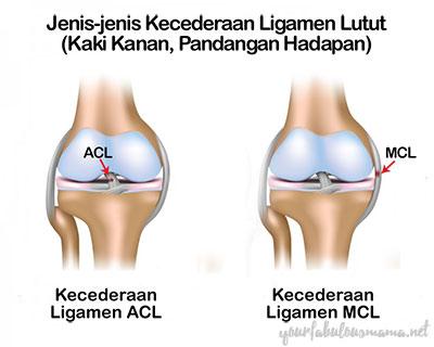 Jenis-jenis Kecederaan Ligamen Lutut