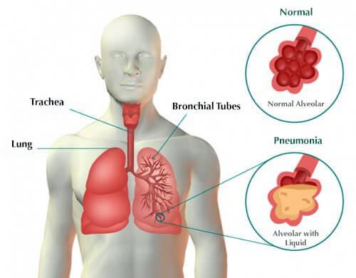 paru-paru berair