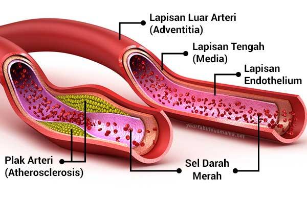 Pembentukan Plak Dalam Salur Darah